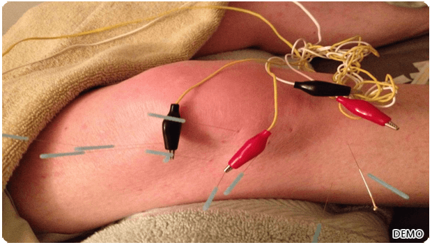 Electro Accupuncture